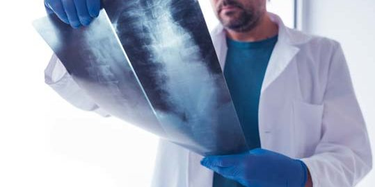 http://forempv.ccoo.es/especialidad/10094/doctor-examining-x-ray-of-the-human-spine-PSKVVK8.jpg